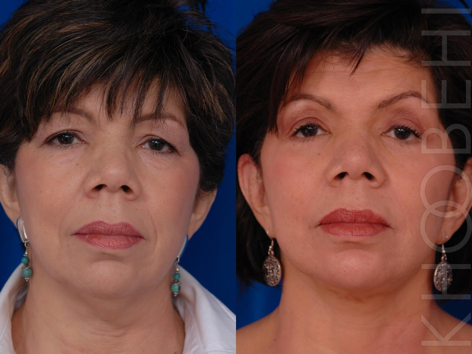 Facelift, Quad Bleph, Fat Before/After