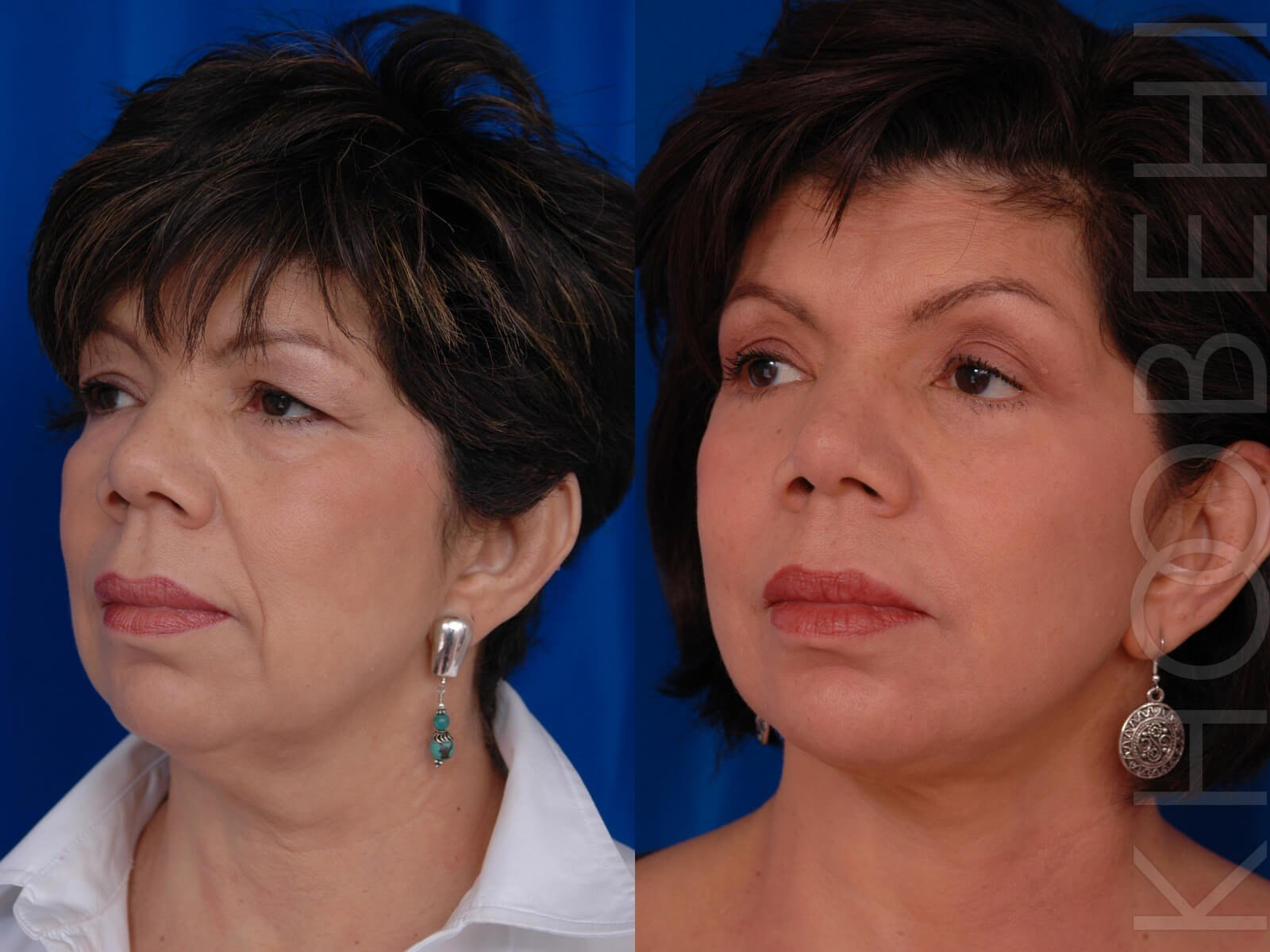 Facelift, Quad Bleph, Fat Before\After