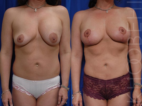 Implant Removal, Fat, Lift Before/After