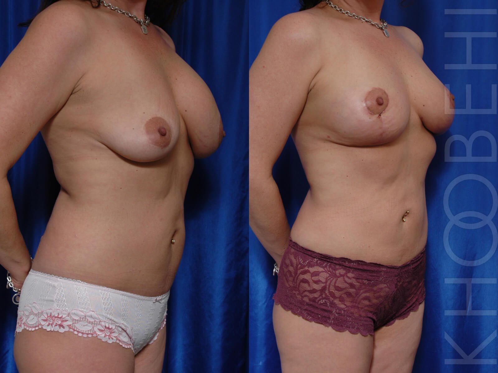 Implant Removal, Fat, Lift Before\After