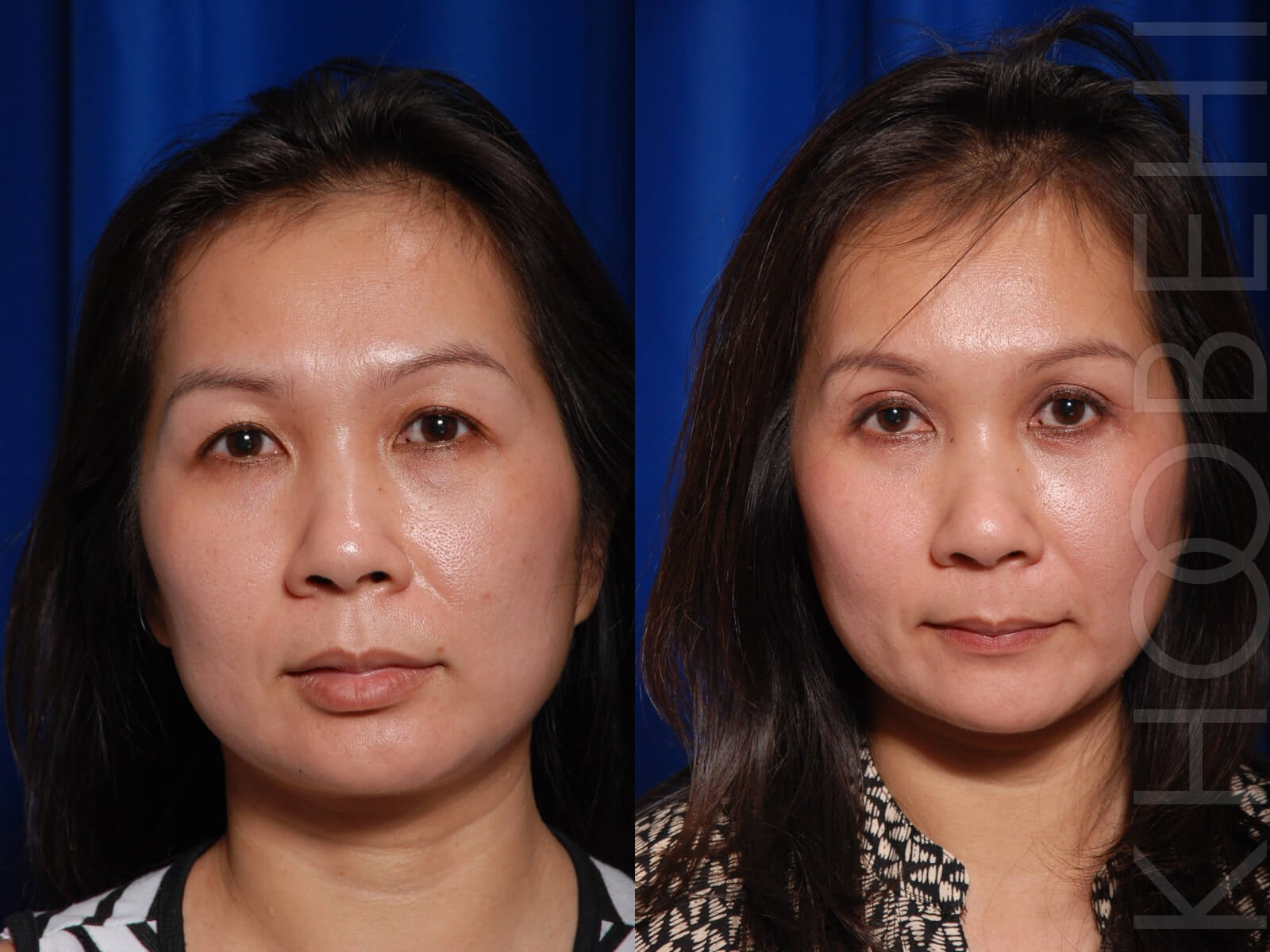 Browlift & Quad Bleph Before/After