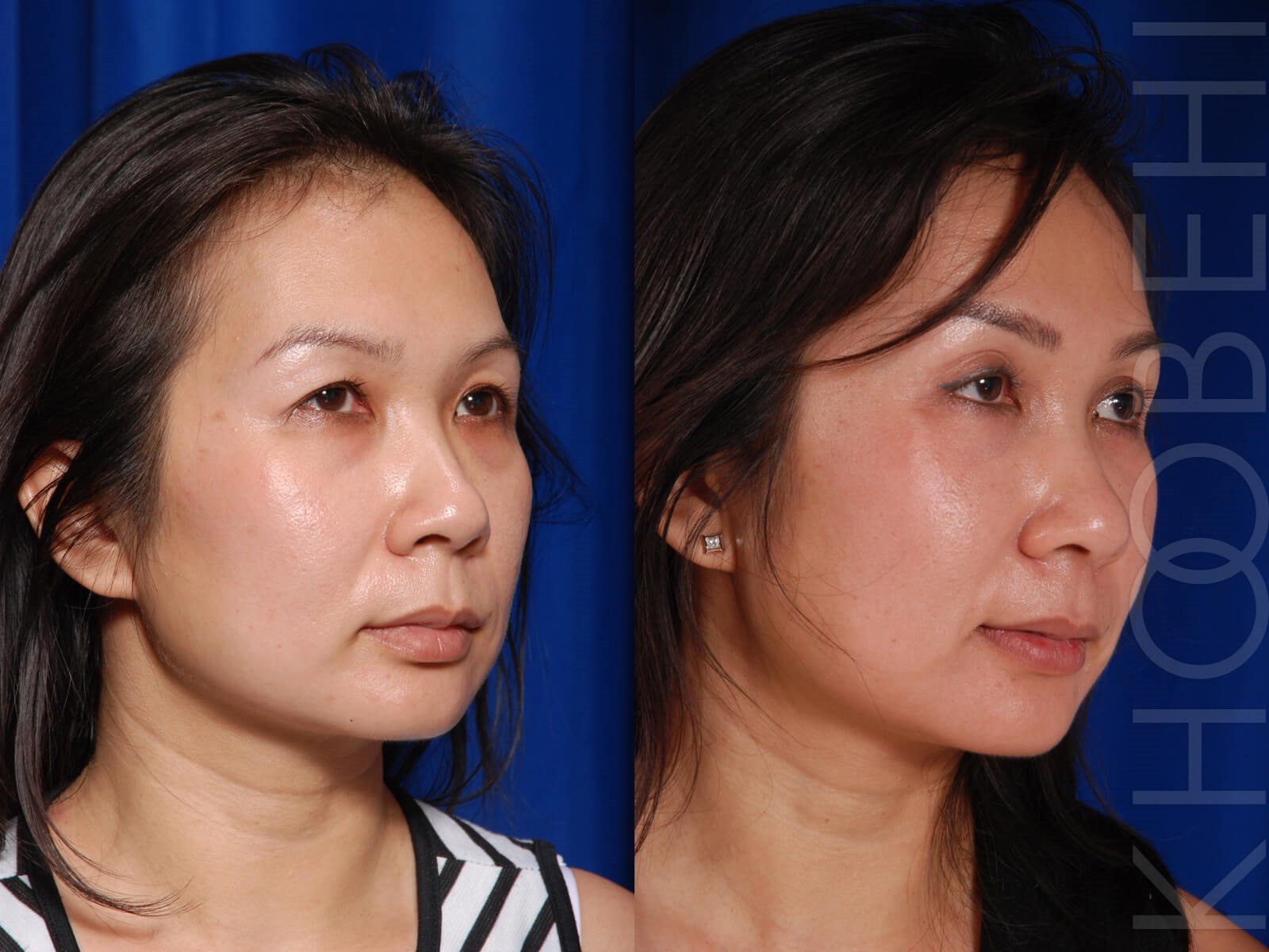 Browlift & Quad Bleph Before\After