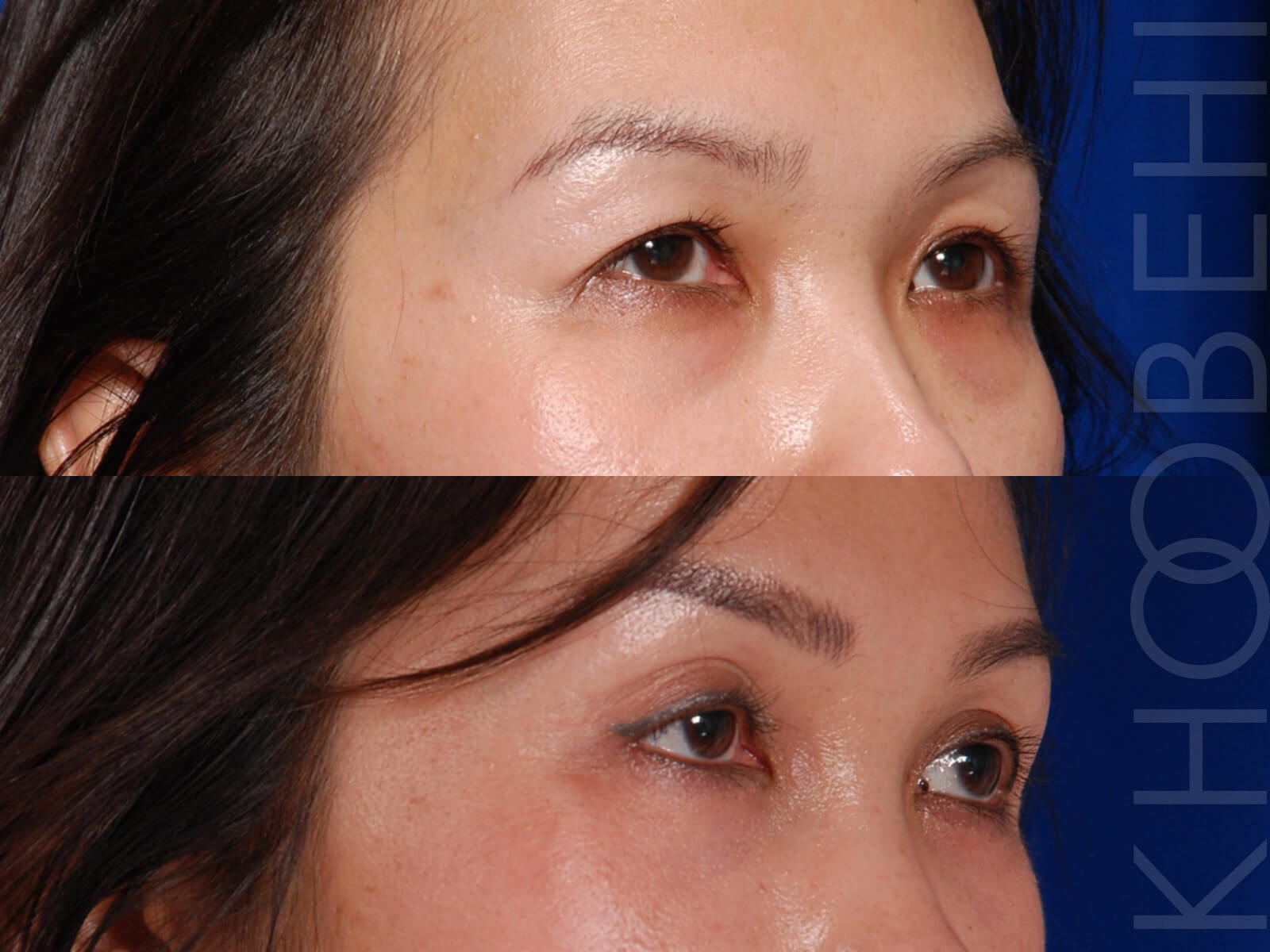 Browlift & Quad Bleph After