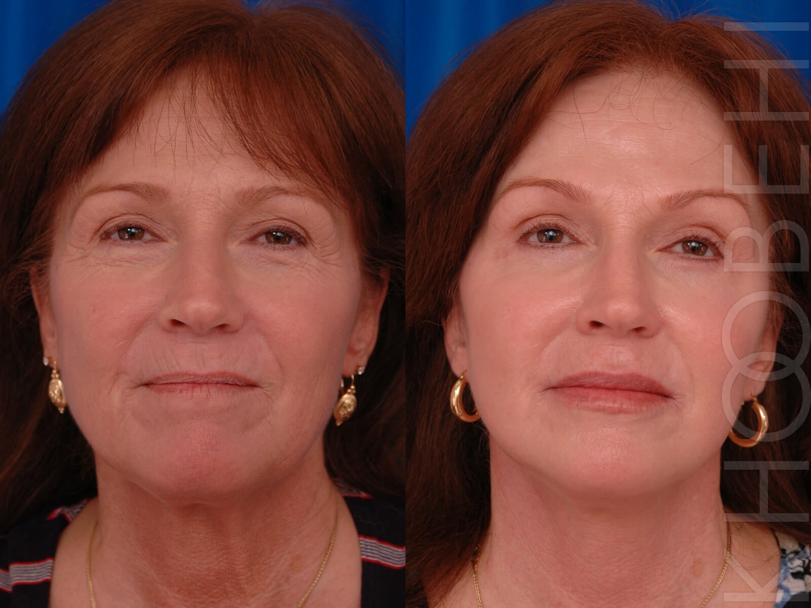 Facelift Before/After
