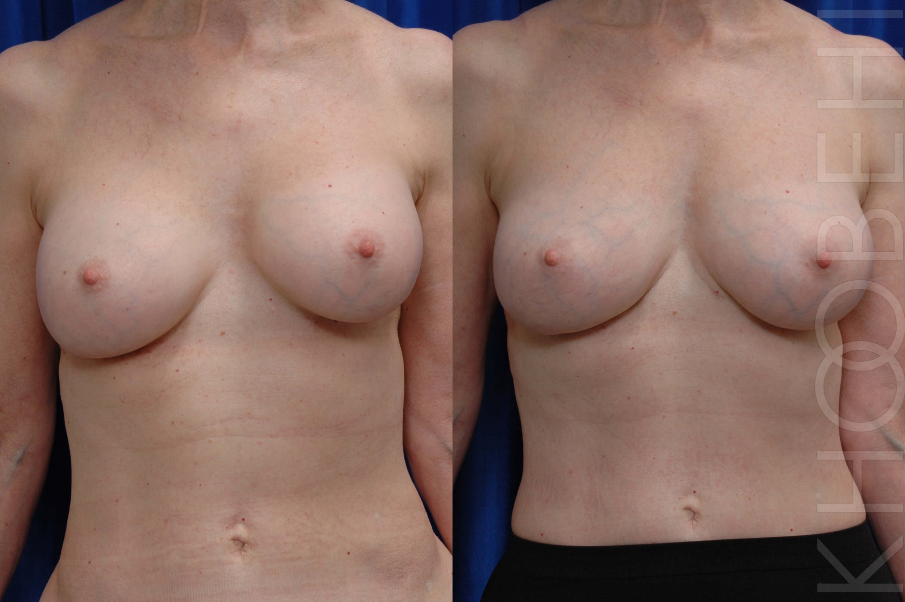 Implant Removal, Fat to Breast Before/After