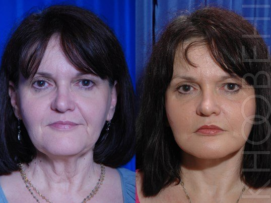 LA Facelift Before/After