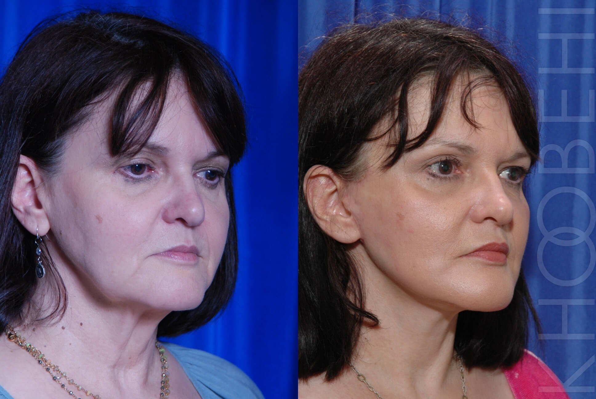 LA Facelift Before\After