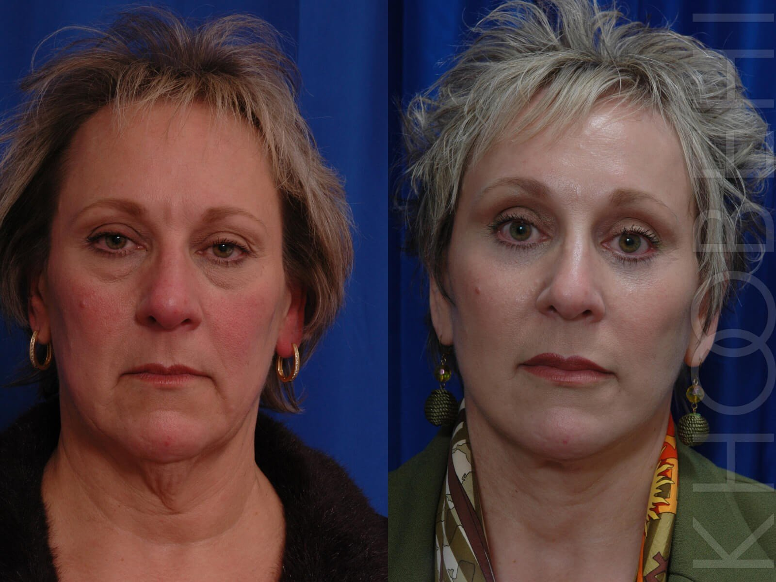Facelift Before\After