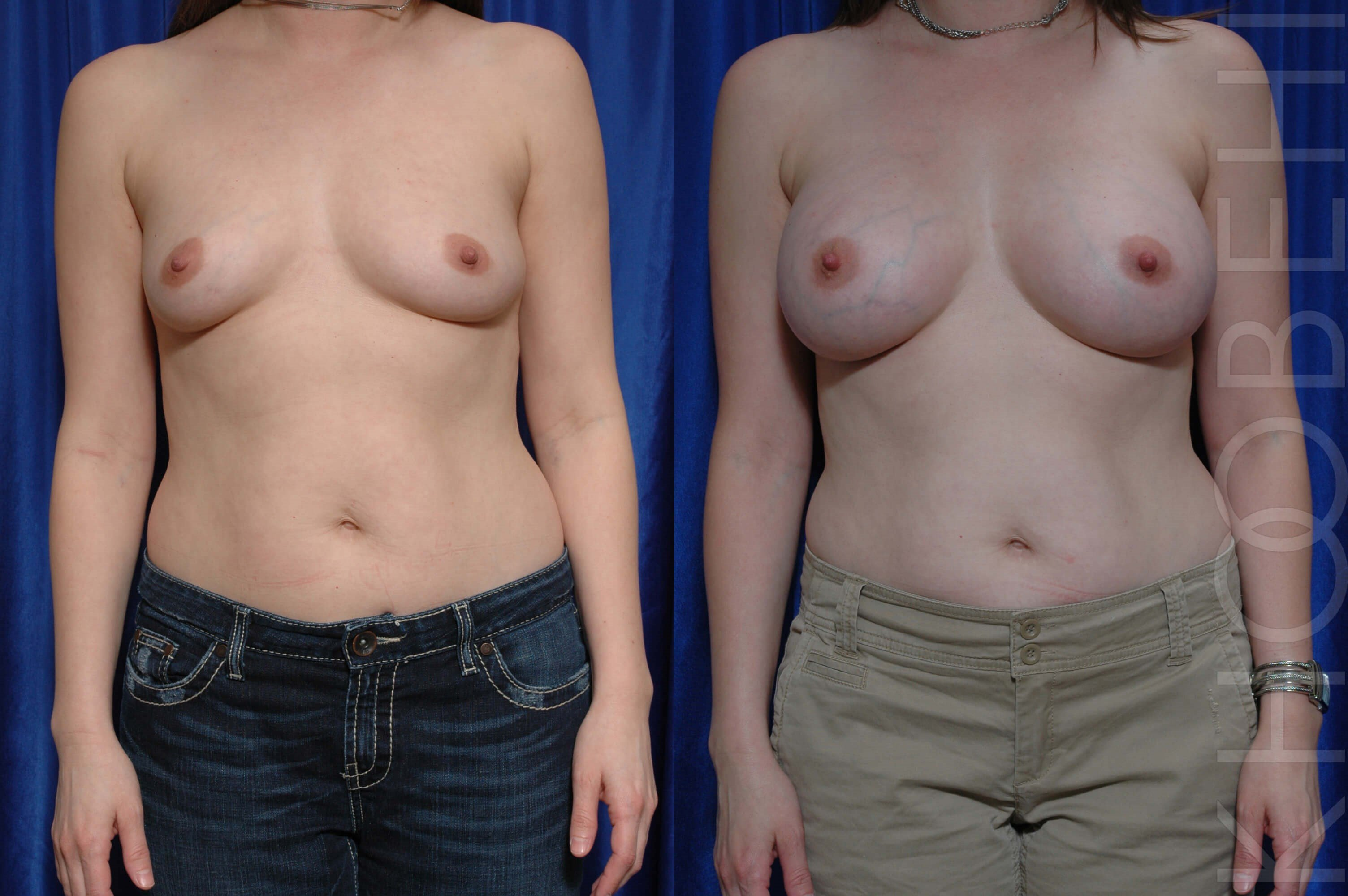 Breast Augmentation Before\After