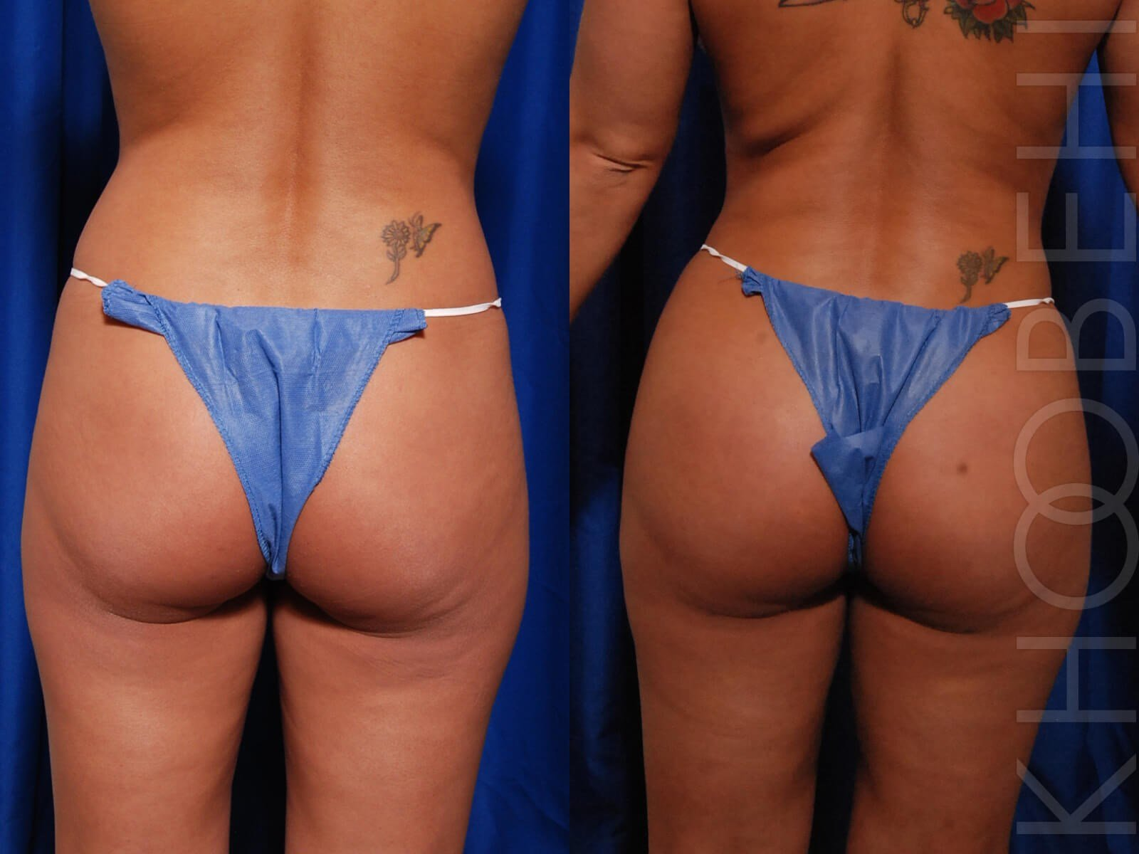 Fat Transfer and Liposuction Before/After