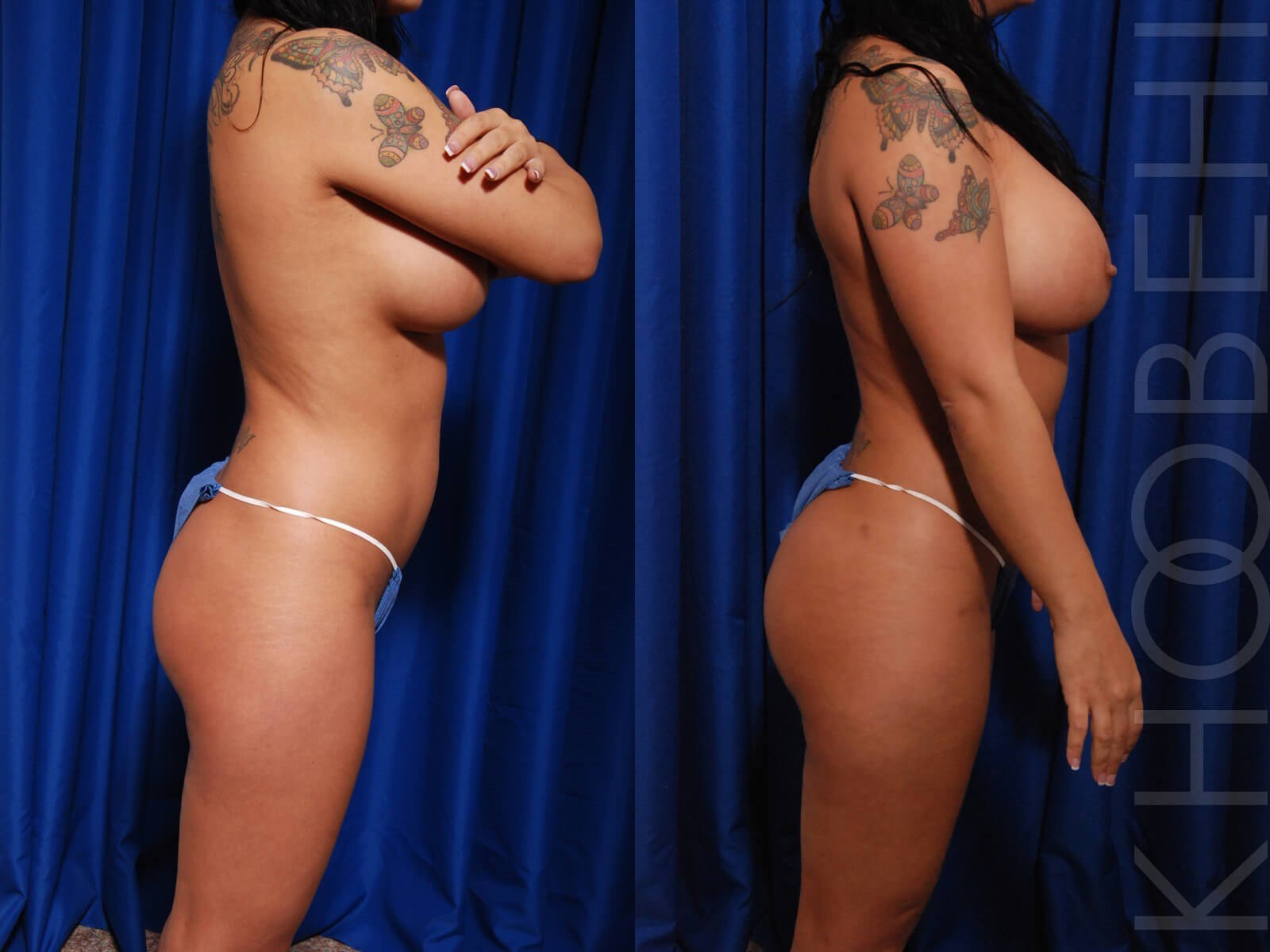 Fat Transfer and Liposuction Before\After