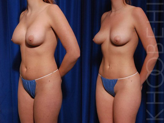 Implant Removal, Fat to Breast Before\After