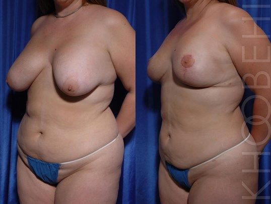 Implant Removal, Fat Transfer Before/After
