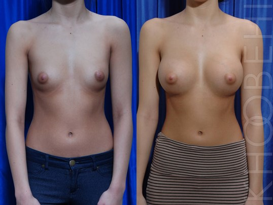 Cleavage Therapy/Fat Grafting Before/After