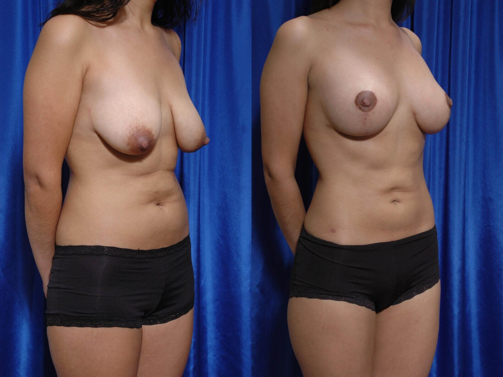 Breast lift Before/After