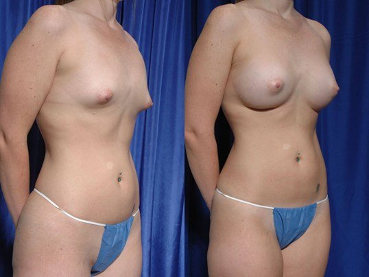 Breast Augmentation Before/After BAM