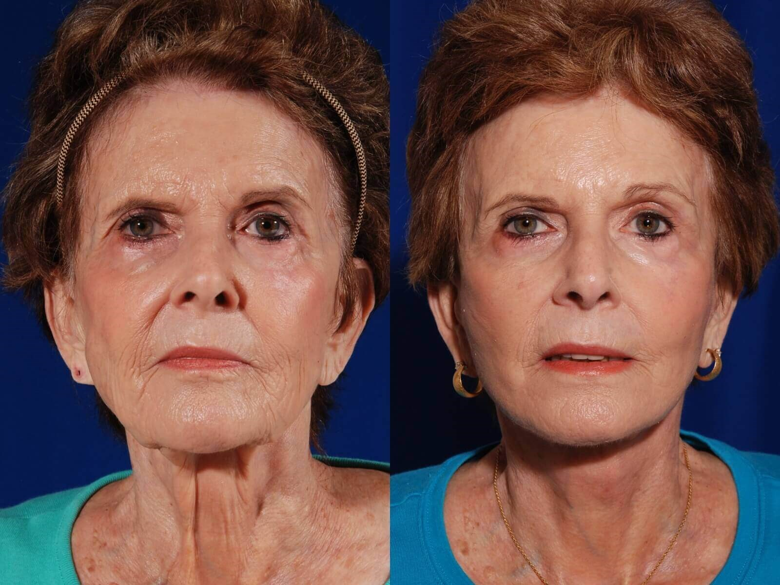 Facelift,BrowLift,Fat to Face Before/After Facelift