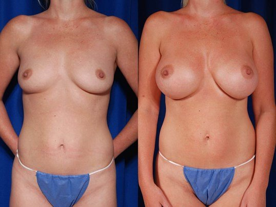 Breast Augmentation Before/After