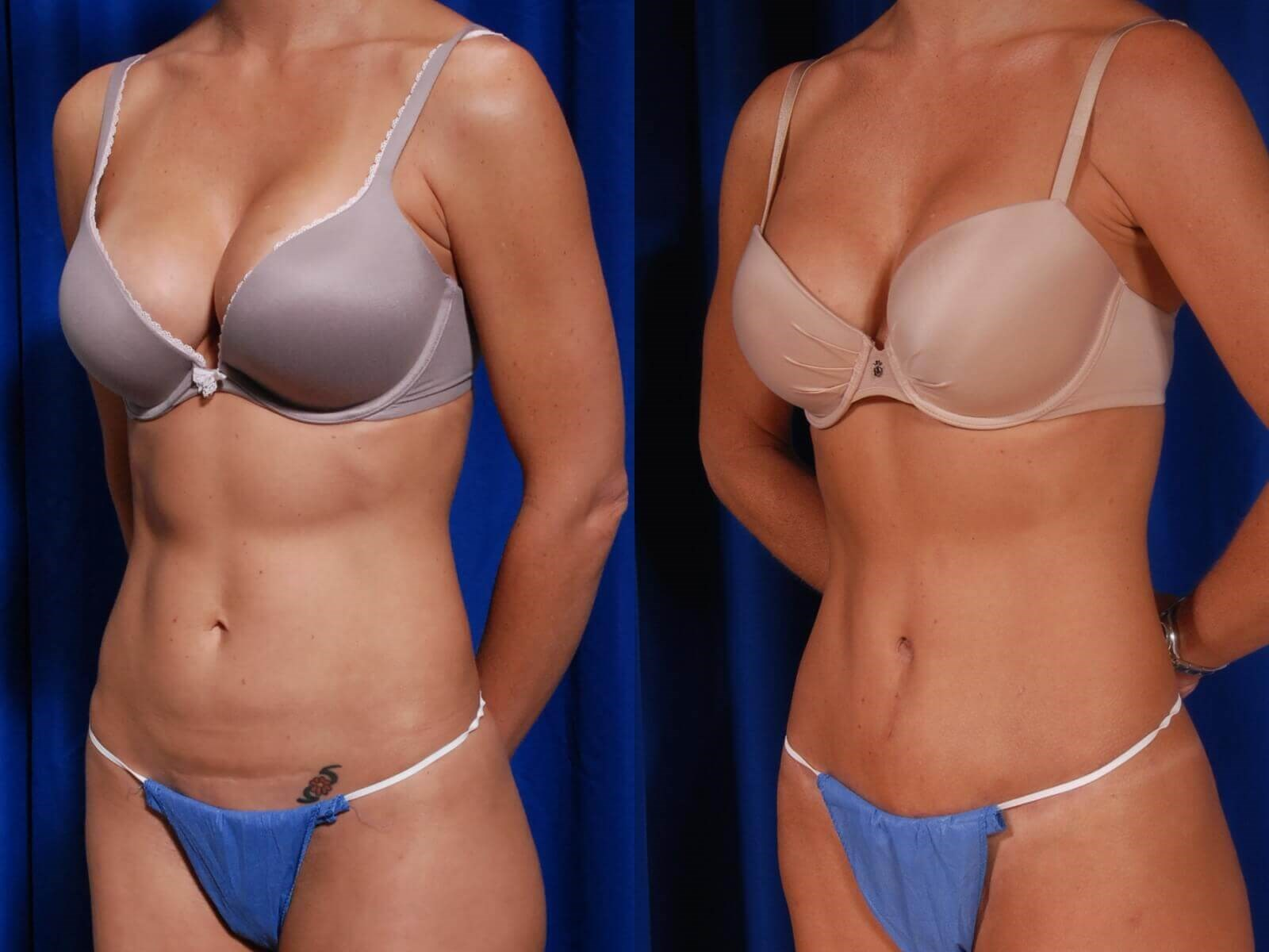 Tummy Tuck, Fat to Hip/Thighs Before/After