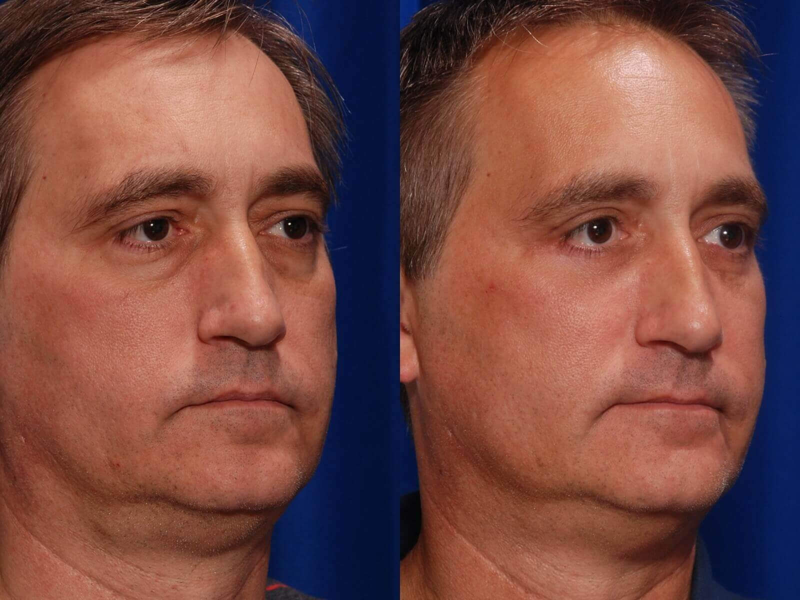 Eyelid Surgery Before/After