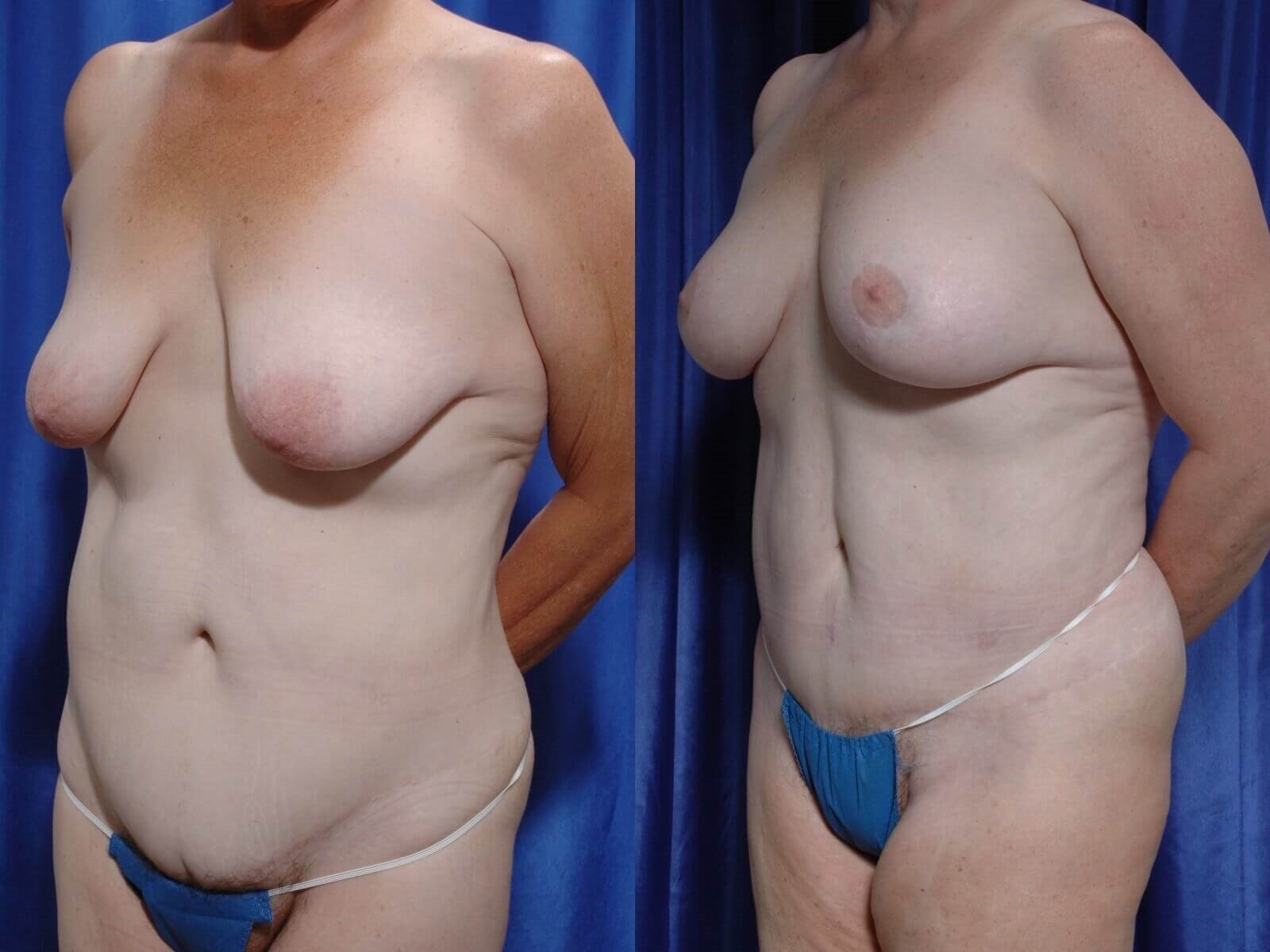 TummyTuck, Fat to Chest, Lift Before/After