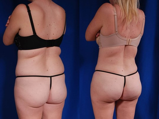 Fat Transfer to Buttocks Before/After