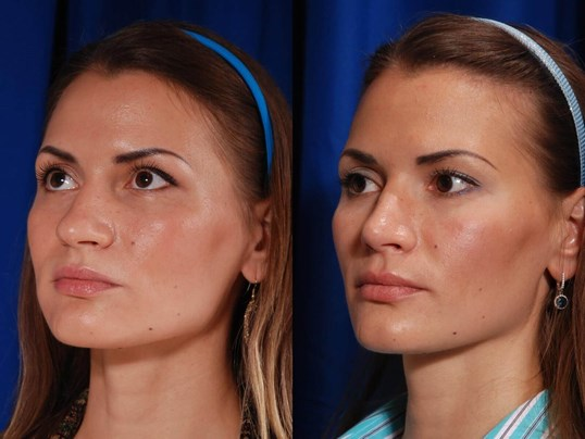 Rhinoplasty Before/After
