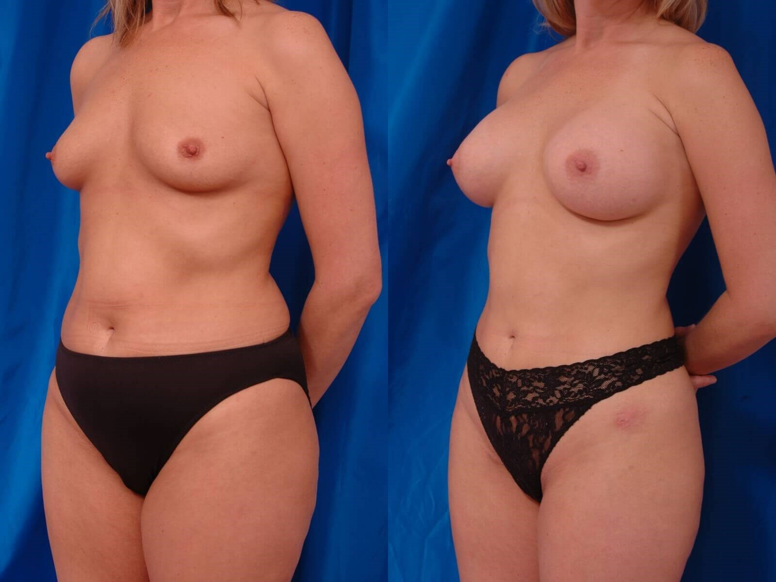 Breast Augmentation, Lipo Before/After