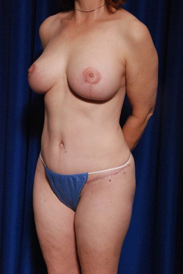 TummyTuck, Fat to Chest, Lift After
