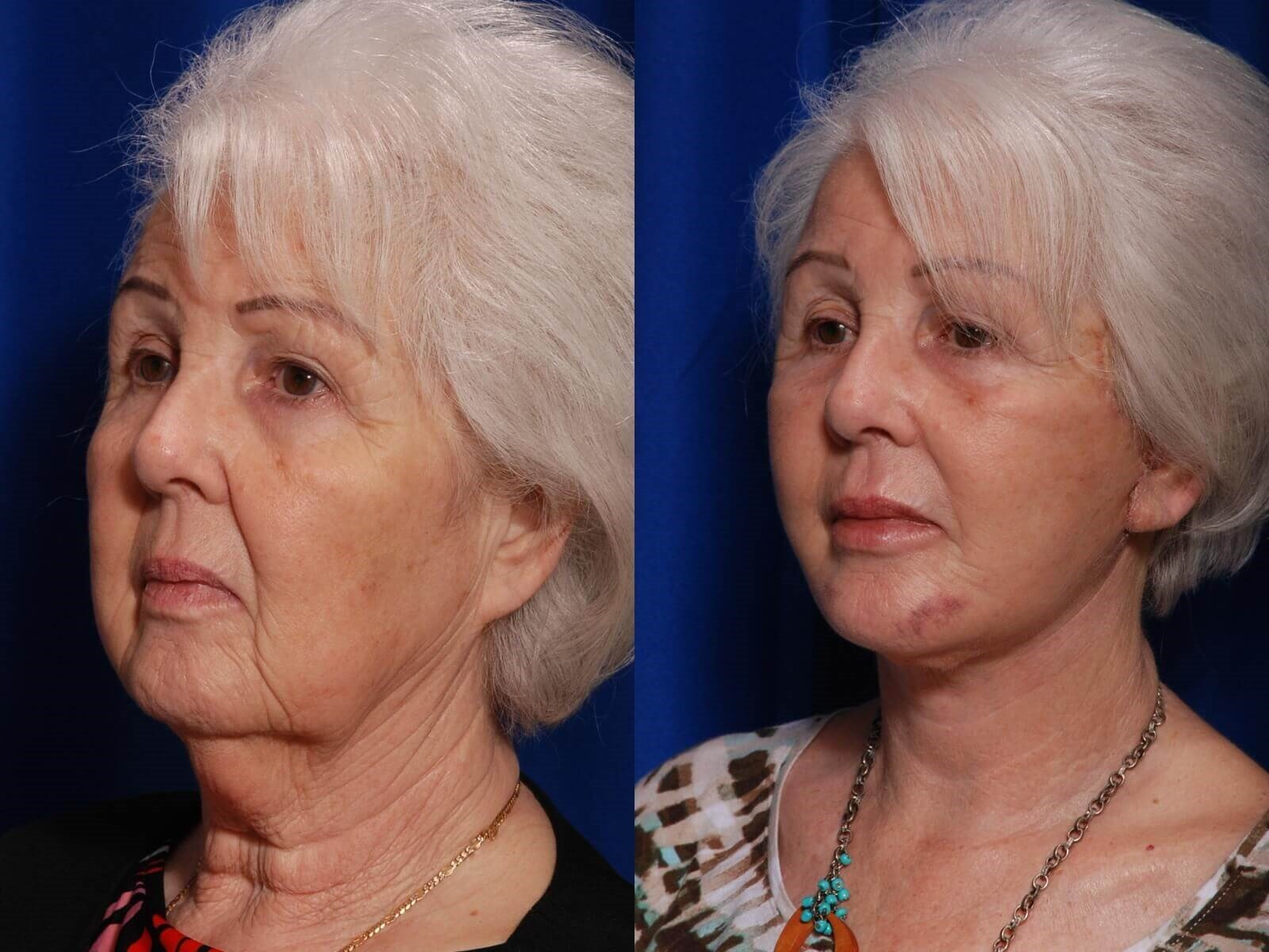 Facelift, Fat Grafting Before/After