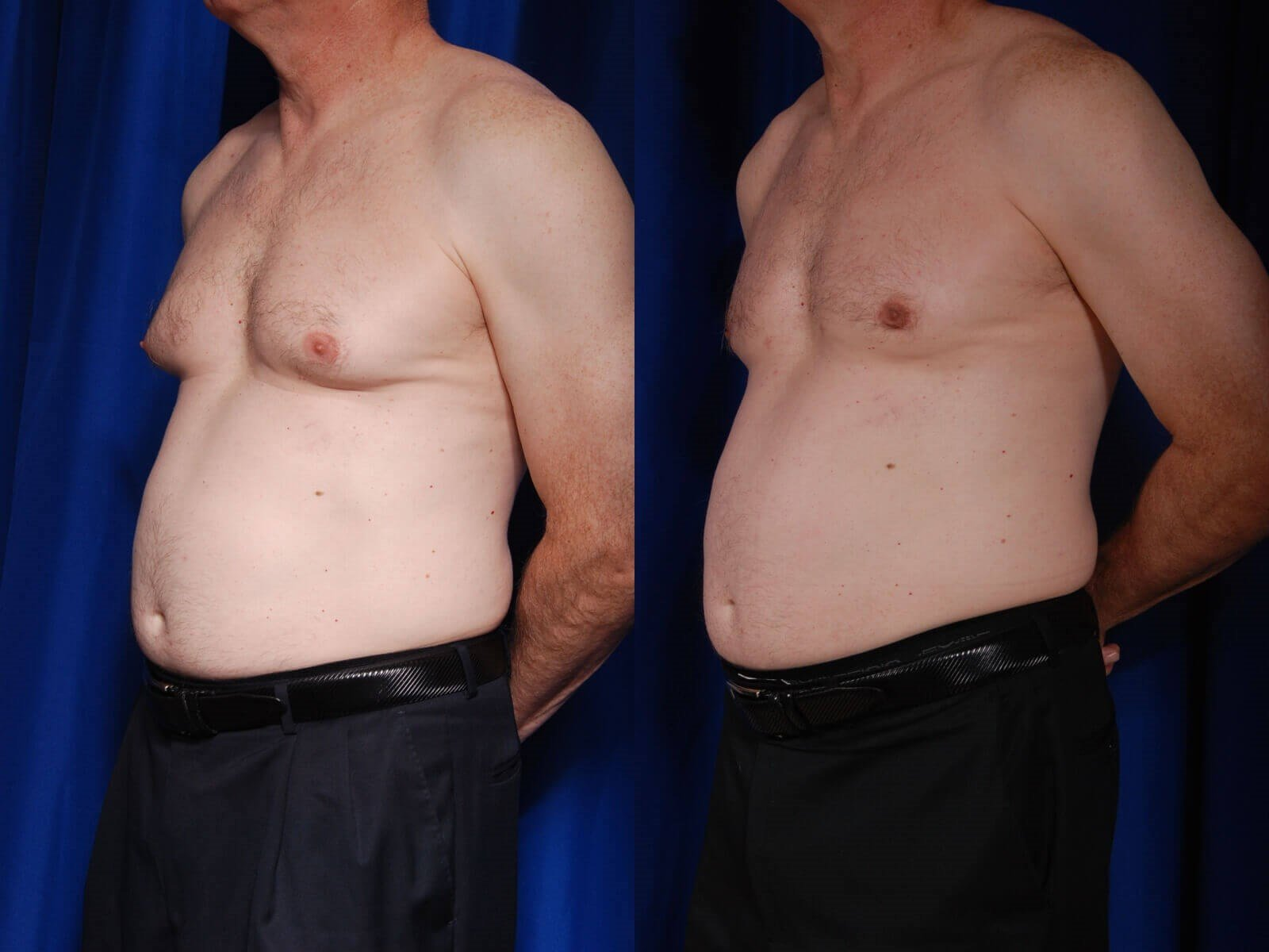 Gynecomastia Before/After