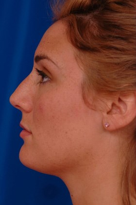 Rhinoplasty Before