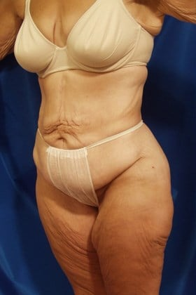 After Weightloss Surgery Before