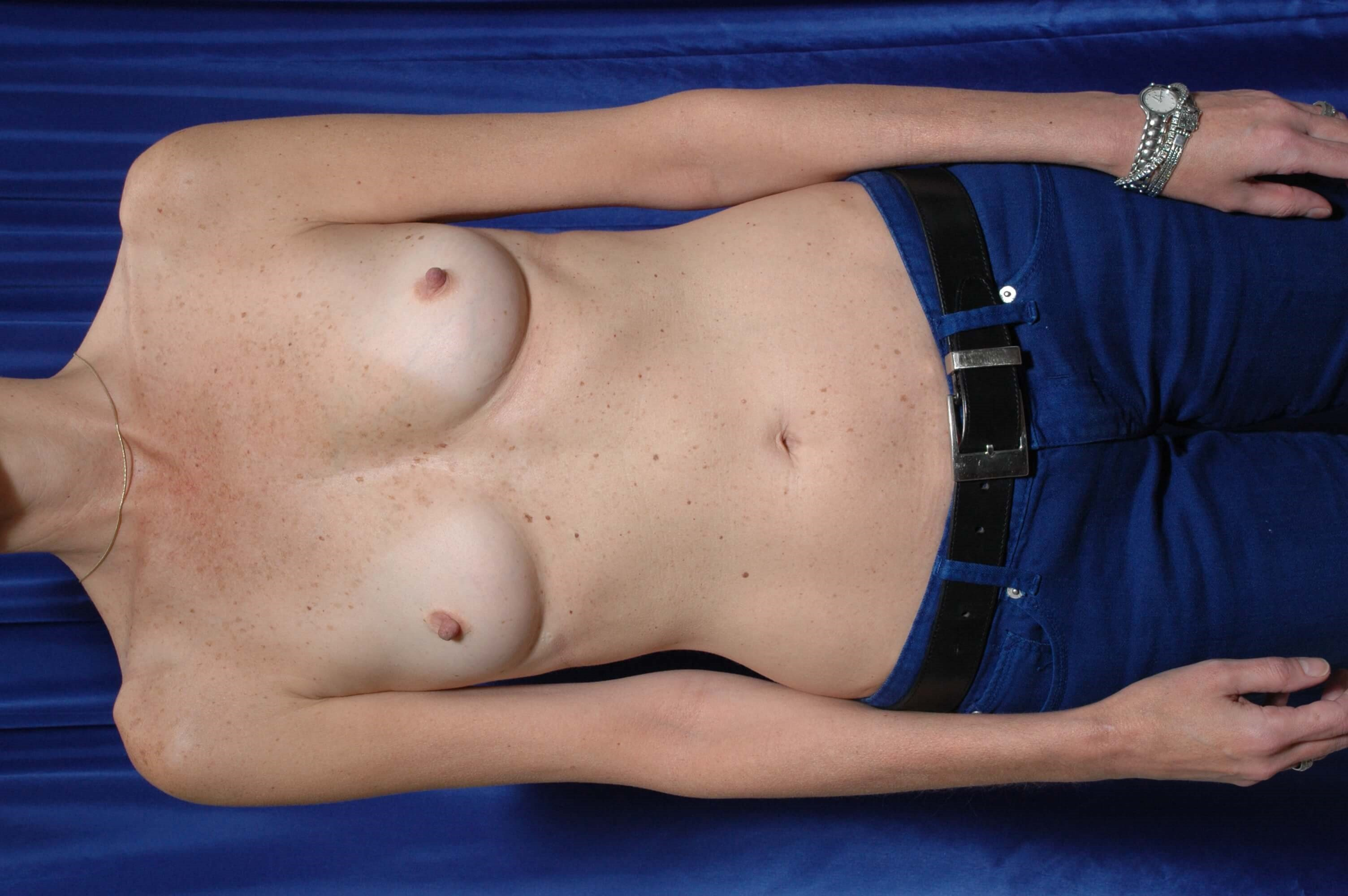 Fat to Breasts w/ Implants Before