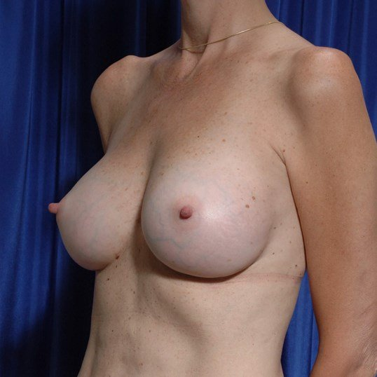 Fat to Breasts w/ Implants After