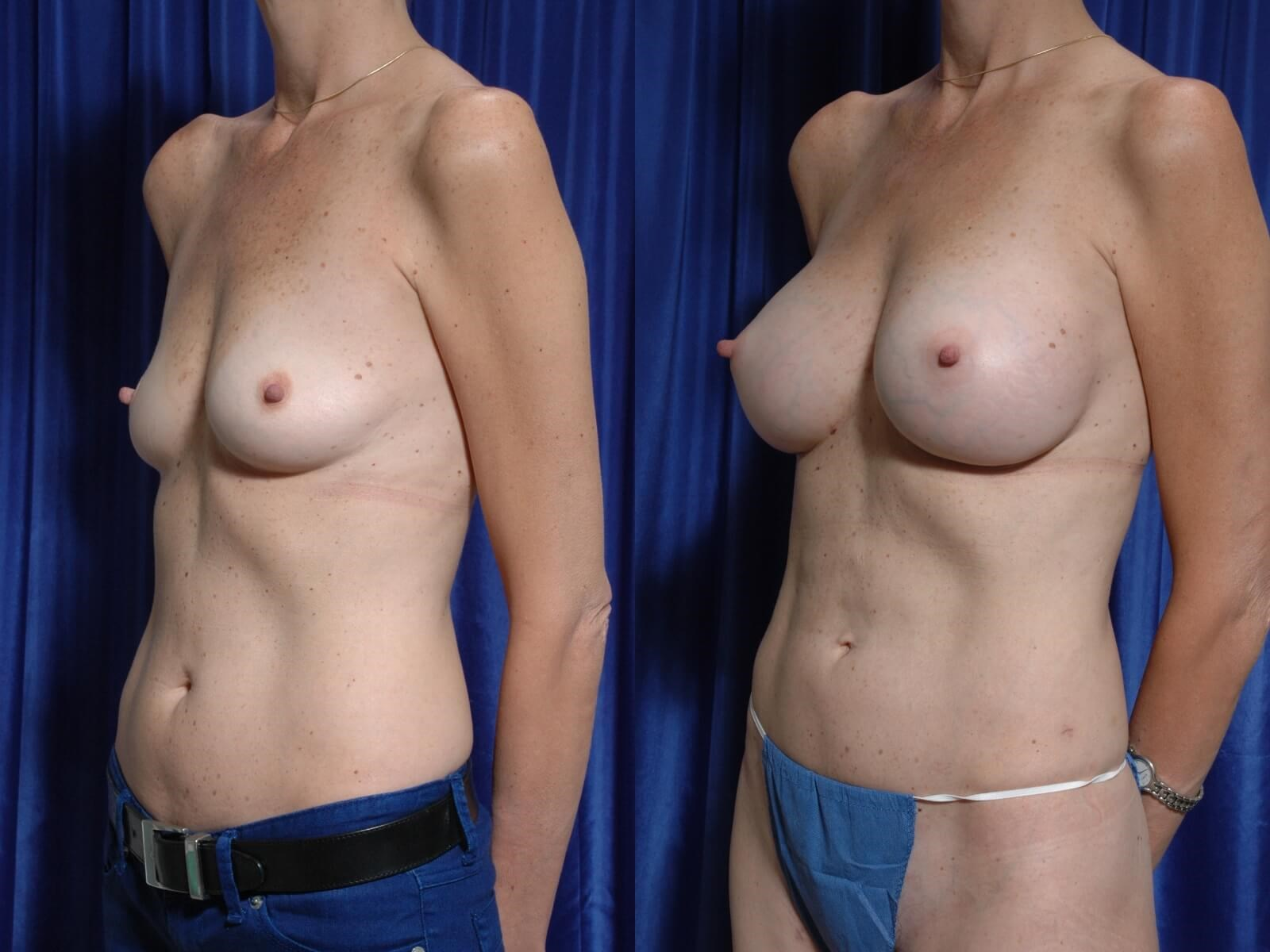 Fat to Breasts w/ Implants Side View Comparison