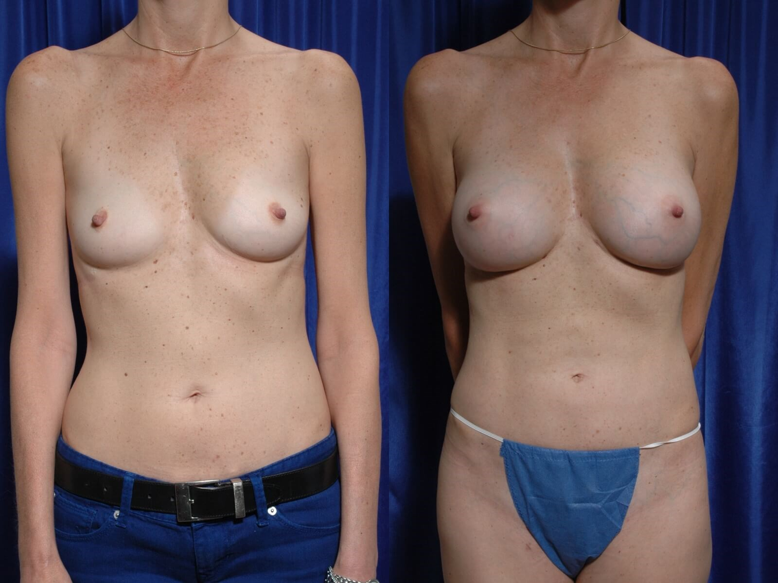 Fat to Breasts w/ Implants Front View Comparison