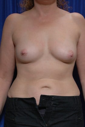 Fat Transfer to Breasts After