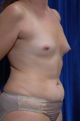 Fat Transfer to Breasts Before