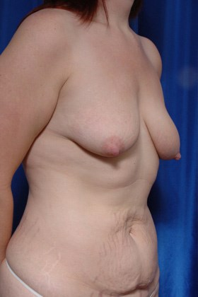Fat to Breasts w/ Lift Before