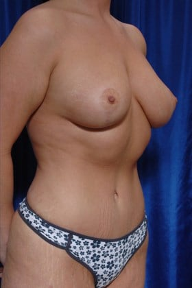 Fat to Breasts w/ Lift After