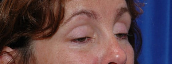 Eyelid Surgery & Ptosis Repair Before