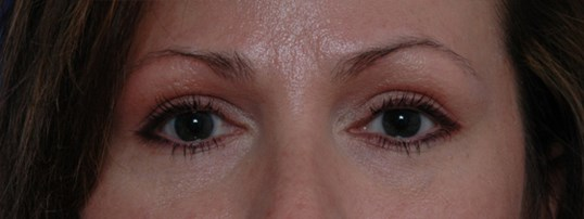 Eyelid Surgery & Ptosis Repair After