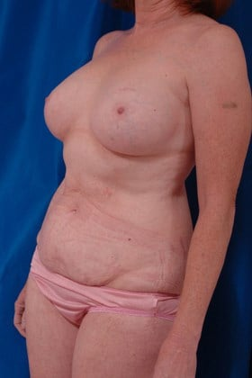Breast Reconstruction DIEP Before